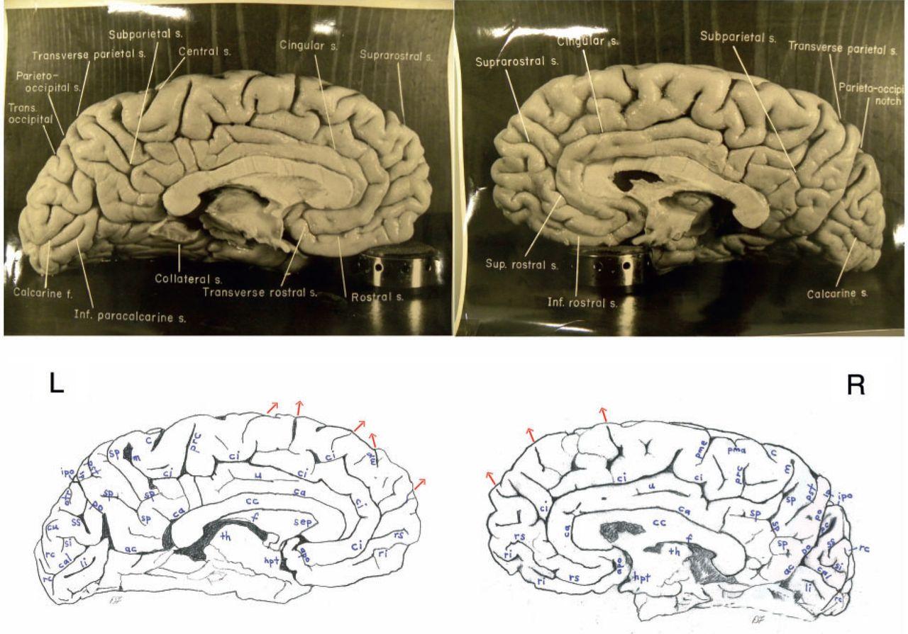 Einsteins brain was different in important ways al fin next level figure 8 ccuart Gallery