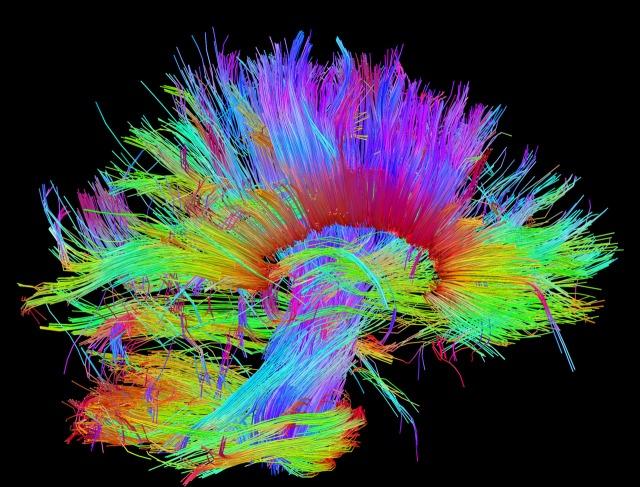 Nerve Fibres Human Brain Sagittal midline