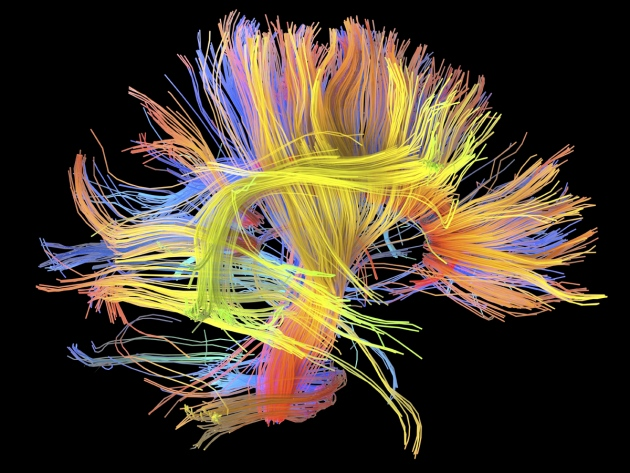 Brain Connectome  http://www.nature.com/news/wiring-diagrams-link-lifestyle-to-brain-function-1.18442