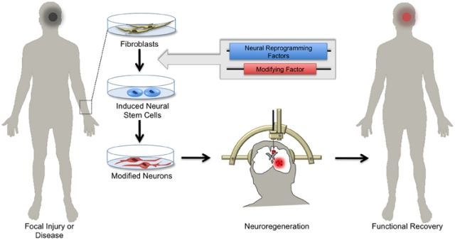 Figure 4. Hopes for using induced neuronal stem cells for regenerative medicine. Skin biopsies from patients with focal neurological injury or neurodegenerative disease are a ready source of fibroblasts. Using the approach of cellular reprogramming and subsequent genetic manipulations, patient-derived fibroblasts can be differentiated into induced neural stem cells (iNSCs) harboring functional elements. Depending on the patient's needs, iNSCs can be differentiated in vitro into specialized neuronal subtypes. Patient-derived neurons can then be transplanted by local injection into areas of diseased or damaged brain tissue. Upon integration, these cells regenerate parenchymal tissue, replacing dysfunctional cells and ultimately supporting functional recovery.