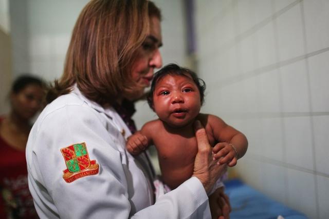 Human Baby w/ Microcephaly Source