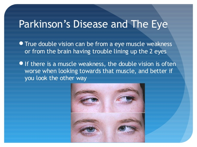 Parkinson's and Strabismus Source